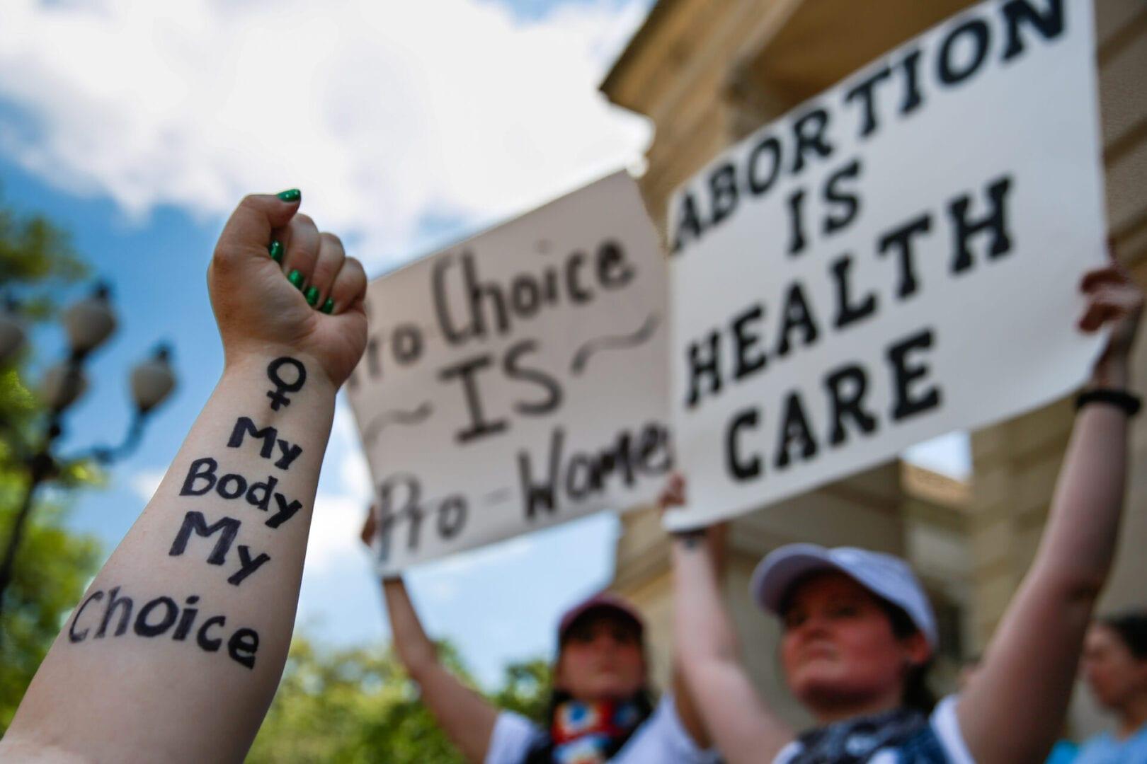 Texas retira de golpe el derecho al aborto